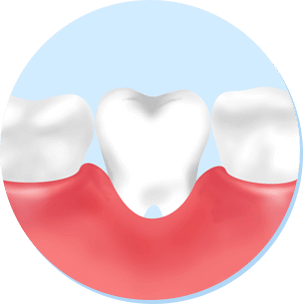 妊娠性歯周炎に注意