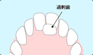 過剰歯の抜歯