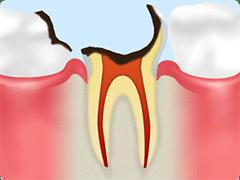 C4(重度の虫歯)