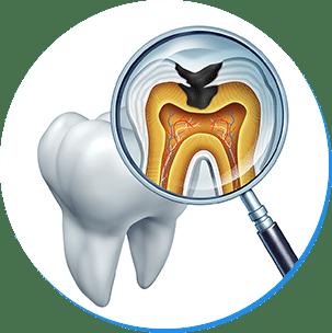 重度の虫歯は根管治療を