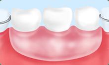 入れ歯(保険適用)