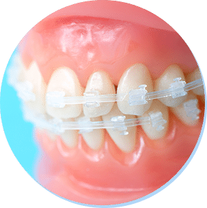 歯並びを直すことのメリット